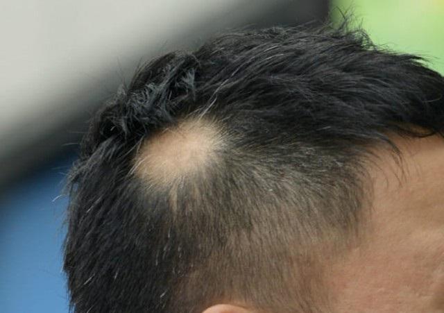 円形脱毛症引用画像01