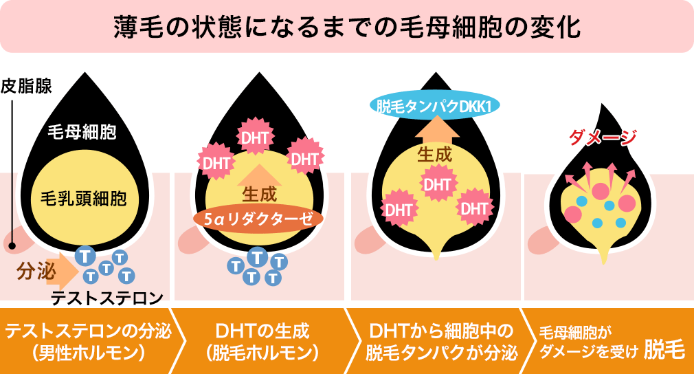 DHT引用画像01